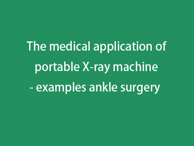 The medical application of portable X-ray machine - examples ankle surgery